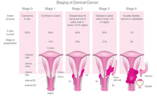 cancer cervical stages