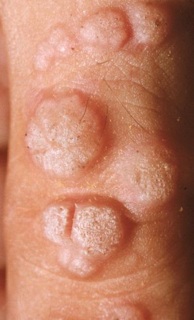 human papillomavirus on knee