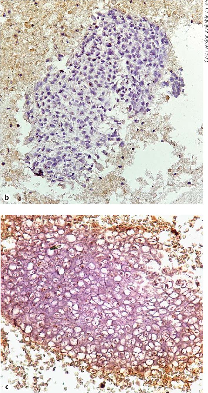 Tumors of the Cervix, Vagina, and Vulva - primariabeuca.ro