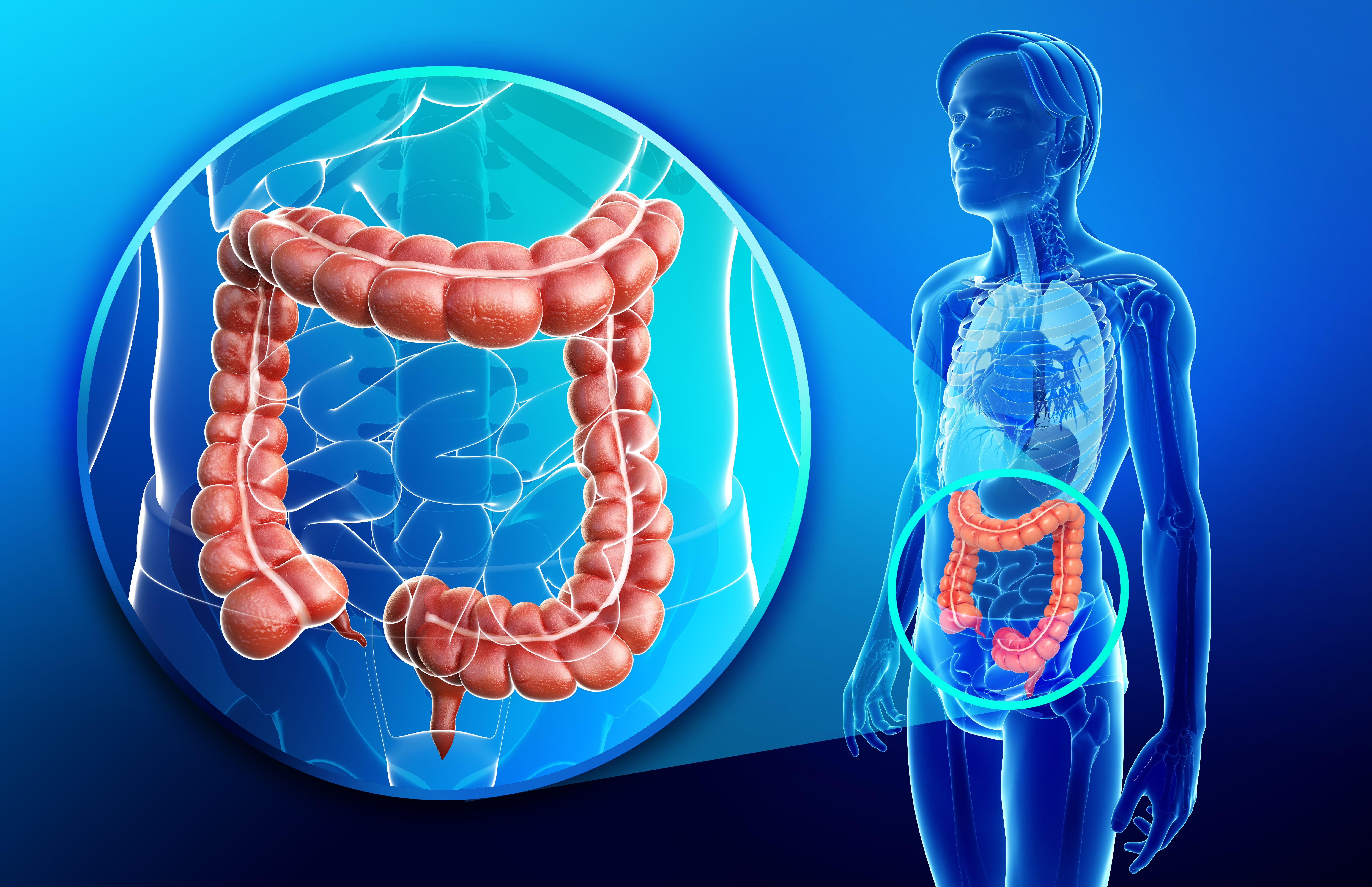 Cancerul de colon: simptome, factori de risc, tratament şi prevenţie