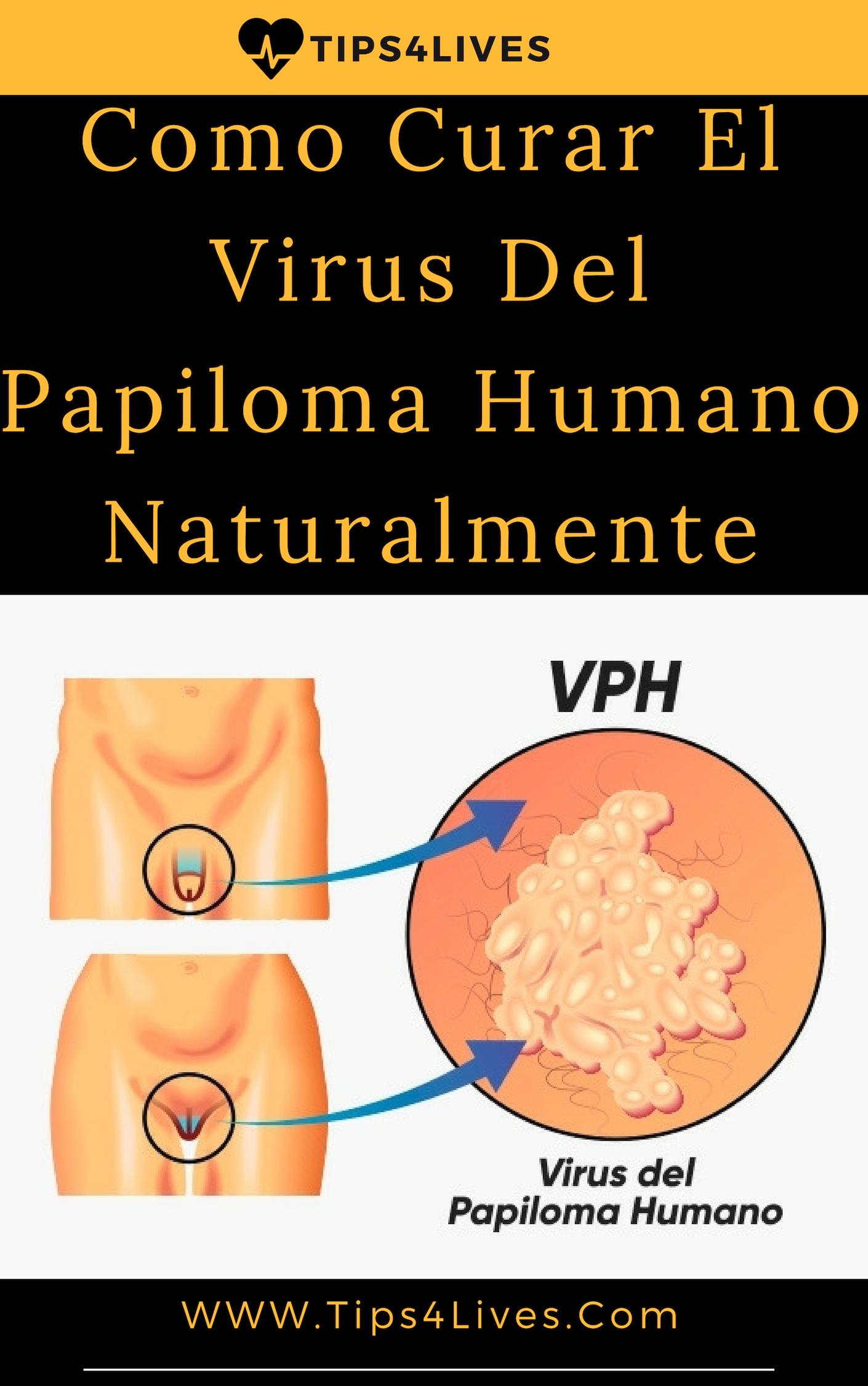 papiloma virus humano tratamiento