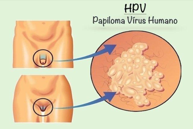 papiloma humano utero sintomas