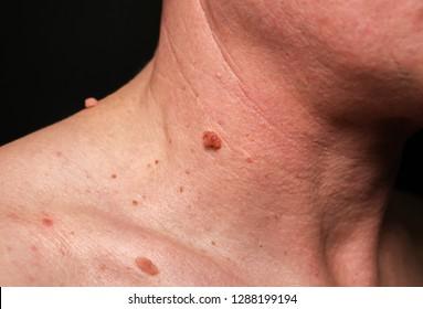 skin papilloma cause