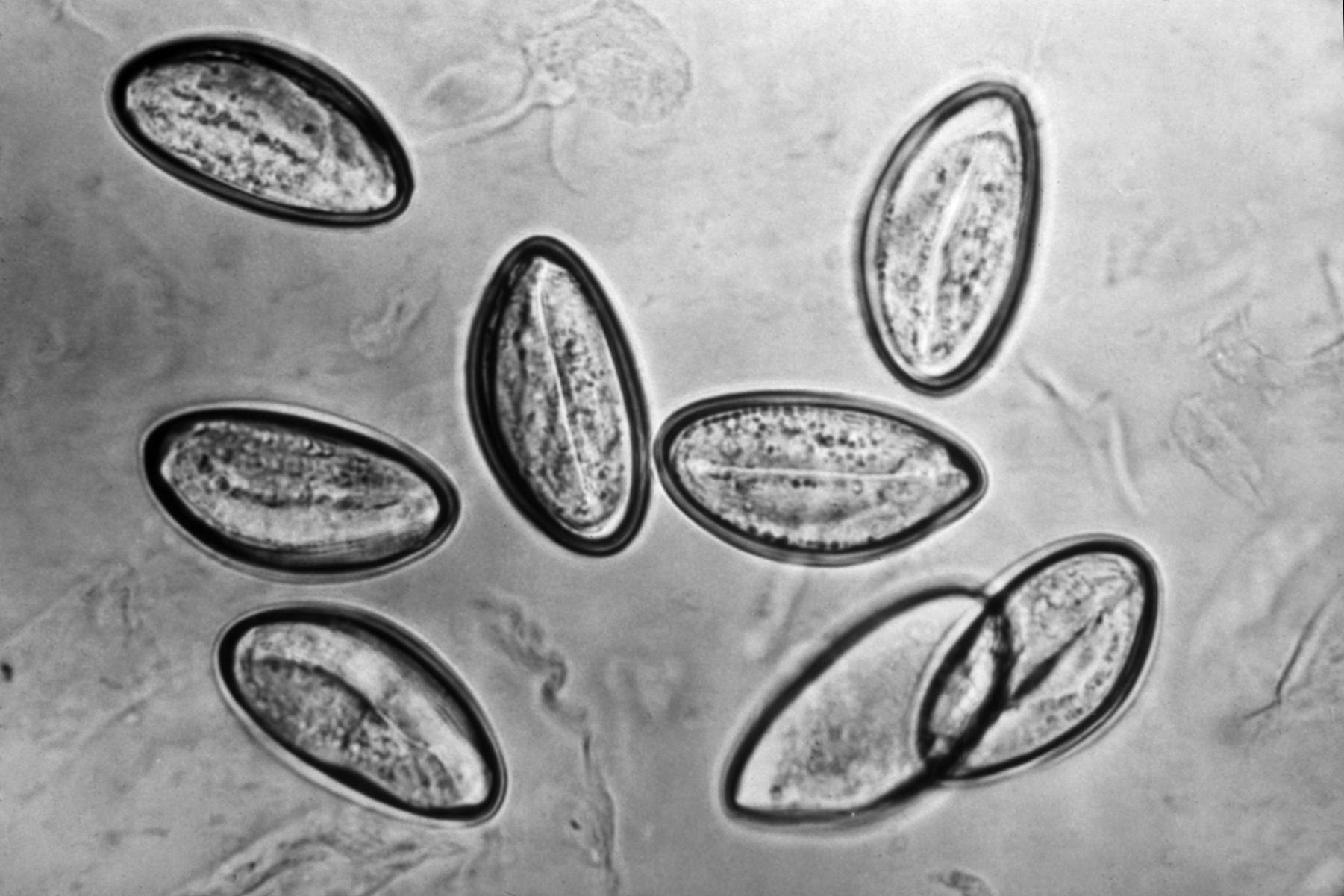 complications of enterobiasis cancer colon varsta 20 ani