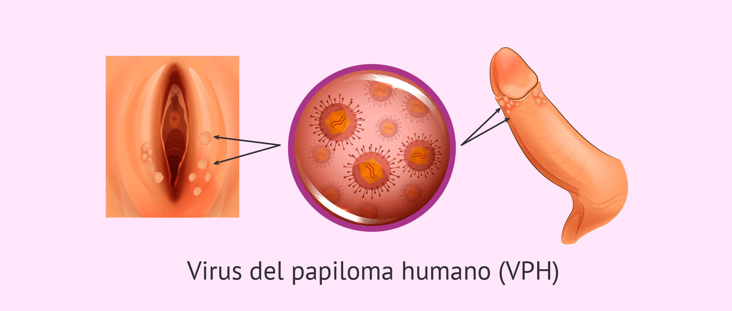 virus papiloma contagio