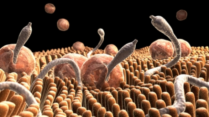 parazitii intestinali simptome neurologice