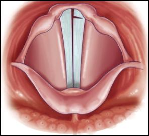 papilloma invertito mascellare
