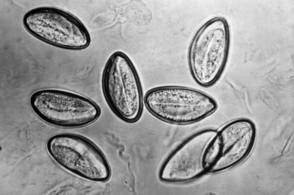 oxiurius vermicularis