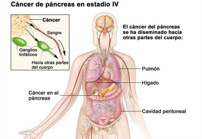 cancer pancreas metastaze sarcoma cancer md anderson