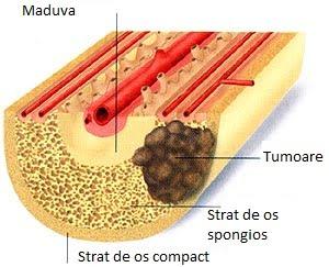 virus del papiloma humano tratamiento casero papillomavirus uterus transmission