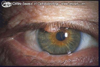 squamous papilloma eyelid icd 10