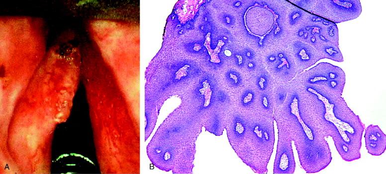 cancerul mamar amg