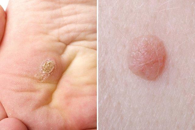 papilloma colli skin tags cancer de colon a