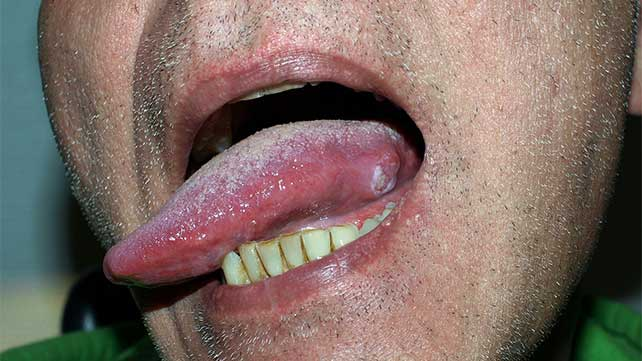 cancer of the tongue caused by hpv