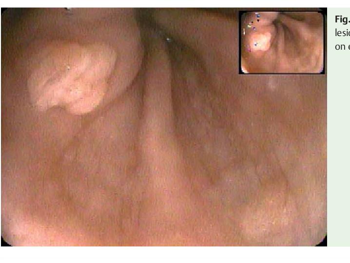 esophageal papillomavirus