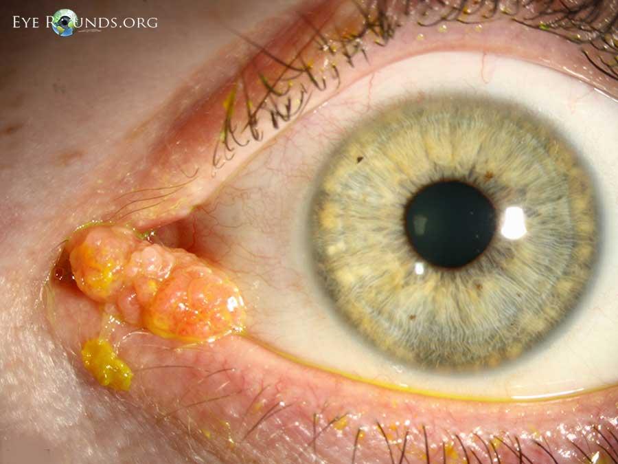 sirop contra parazitilor intestinali anthelmintic activity definition