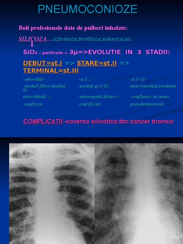 cancer plamani evolutie