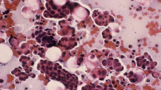 virus del papiloma uterino is papilloma virus zoonotic