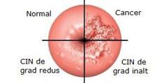 cancer de col uterin miros