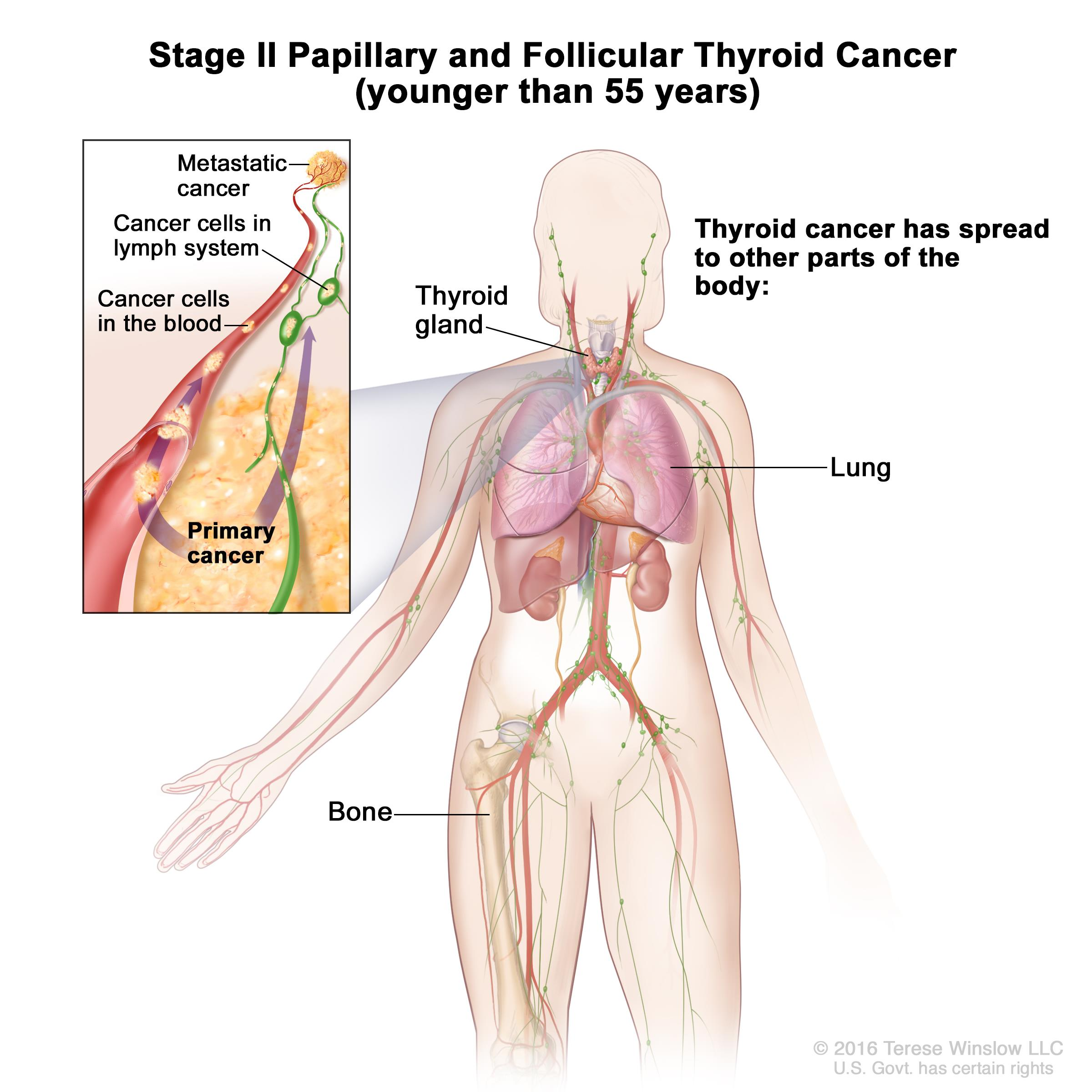 papillary thyroid cancer spread to chest