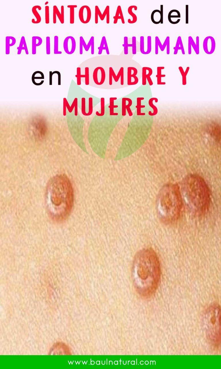 virus de papiloma humano en la mujer sintomas