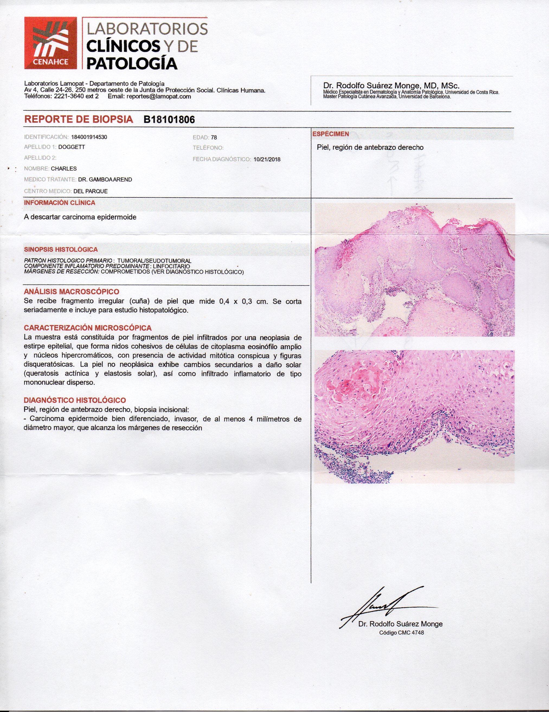 Simptome cancer de piel