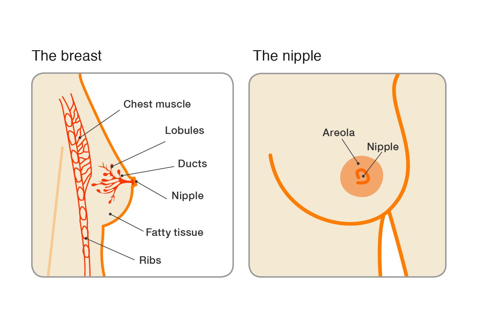 papilloma and breast pain