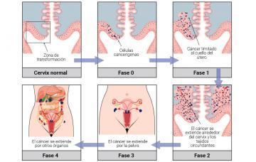 cancer cervical definicion oxiuri la bebelusi simptome