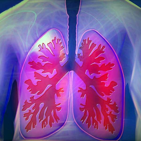 Cancerul pulmonar a început să fie vindecat | primariabeuca.ro