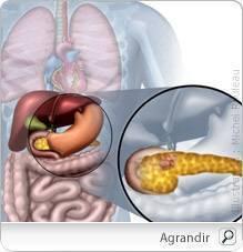 cancer de la pancreas symptomes cancer de colon la copii simptome