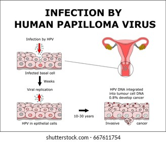 is hpv virus a cancer