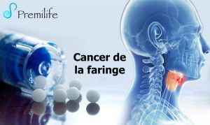 cancer ala faringe