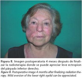 cancerul maxilo-facial papilloma genital