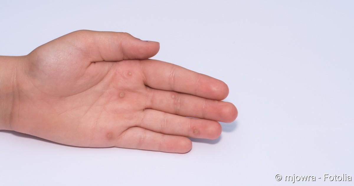 hpv warzen an der hand hpv cancer mortality rate