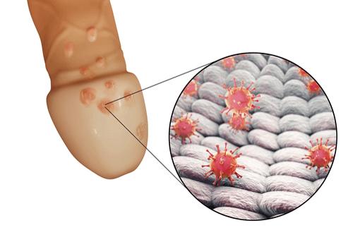 Cancerul de col uterin. Care sunt cauzele şi cum îl prevenim