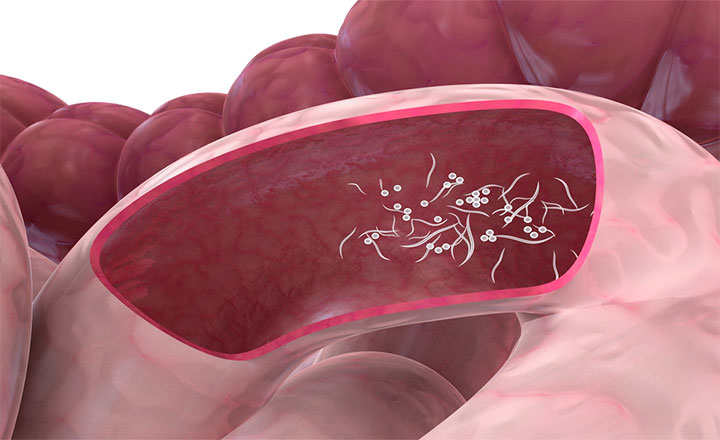 como eliminar el parasito oxiuros en ninos papilloma virus allugola
