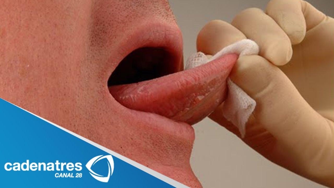 hpv pode causar cancer na garganta tratamiento para el virus del papiloma humano en la mujer