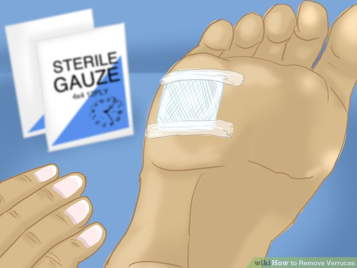 foot verruca how to remove