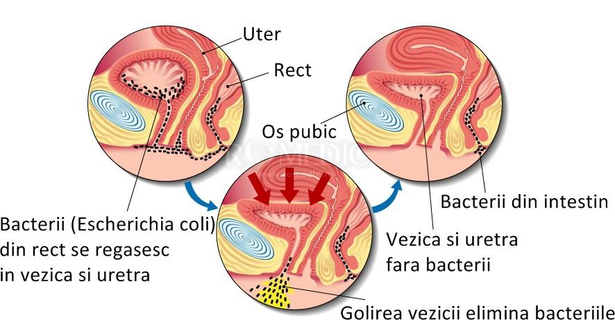 bacterii tract urinar human papillomavirus molecular model