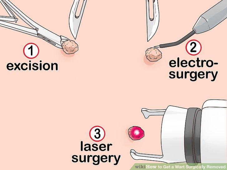 papillomavirus operation laser