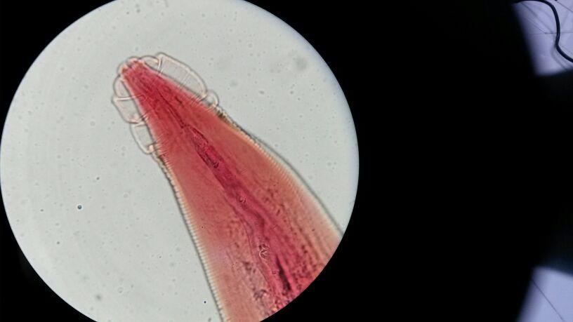 papilloma virus gola come si cura