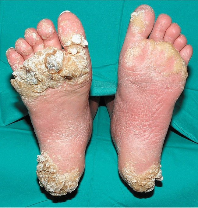 hpv warts on feet treatment