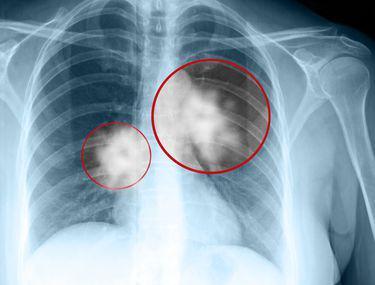 Cancerul pulmonar - Tratament si simptome timpurii, cancer la plamani