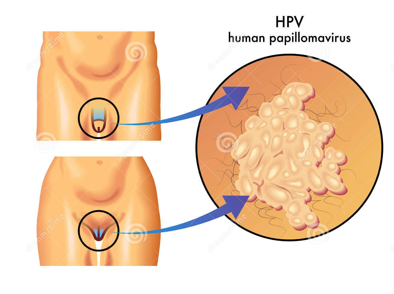 crema per papilloma virus umano human papillomavirus homeopathy