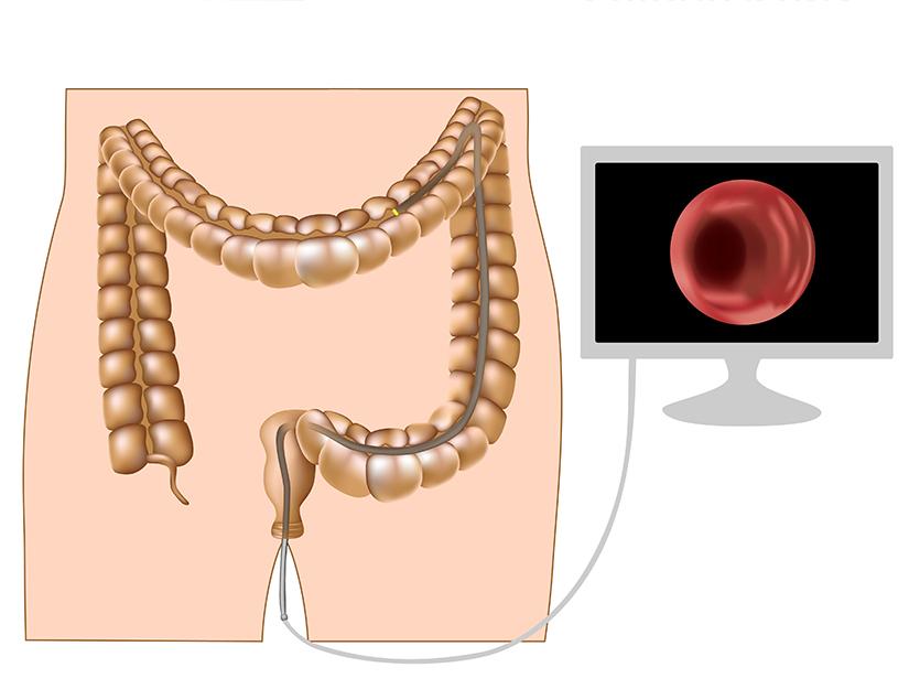 cancer la colon sanse de supravietuire paraziti u nasem organizmu