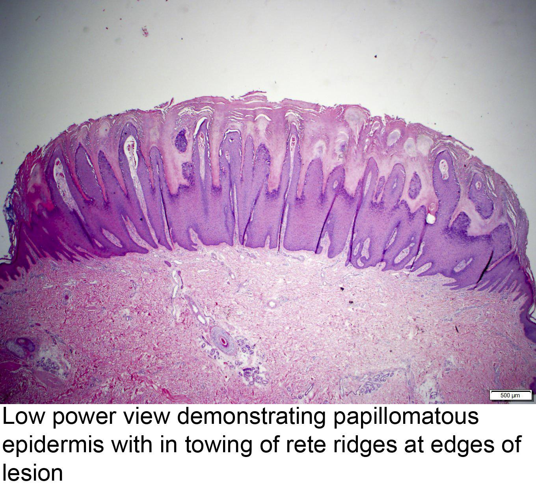 HPV și hiperplazie endometrială icd-9