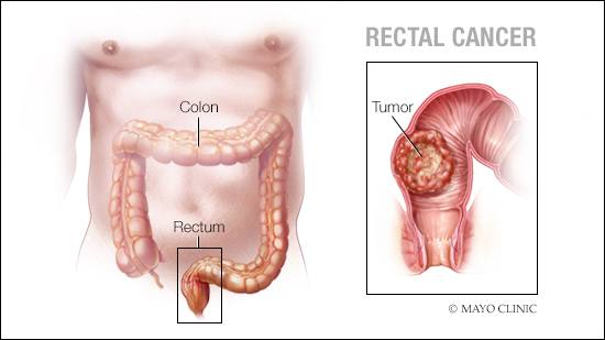 rectal cancer hpv