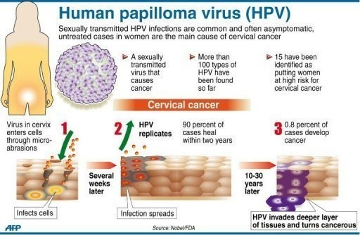 cervical cancer immunotherapy papilloma palpebrale superiore