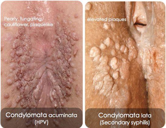 hpv condylomata acuminata screening in cancerul colorectal