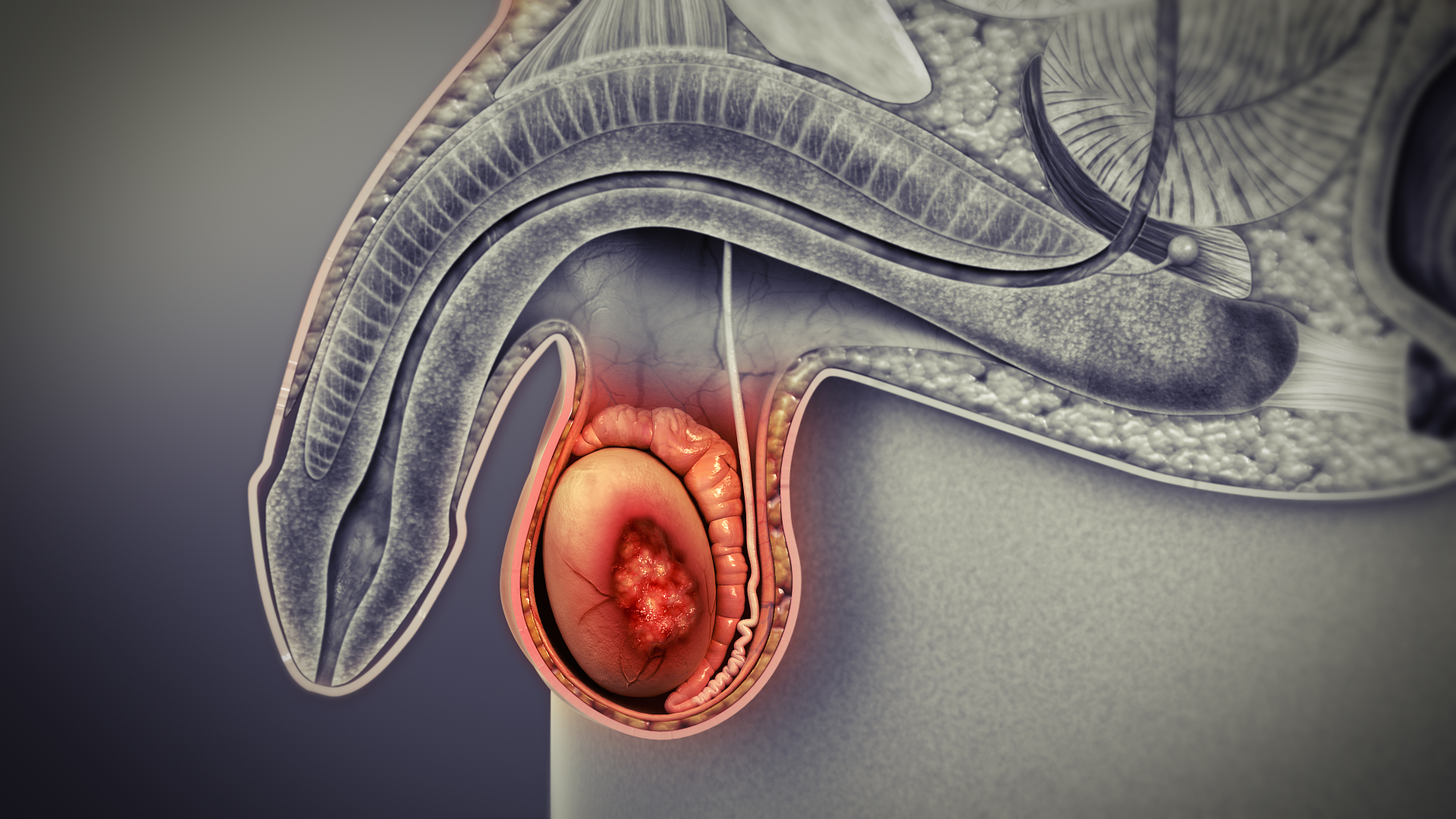 testicular cancer is treatable schistosomiasis bladder cancer